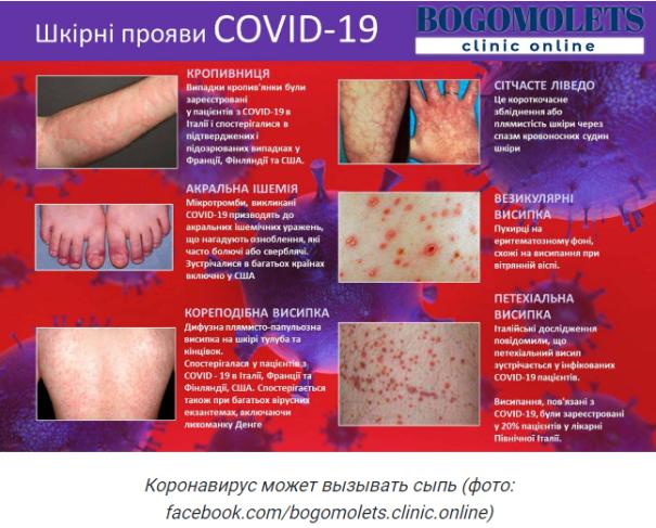 Врачи показали фото проявлений одного из симптомов коронавируса