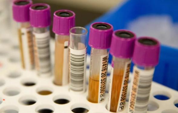 Ученые обнаружили новый симптом коронавируса