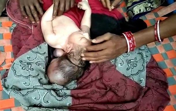 В Индии родился трехглавый ребенок